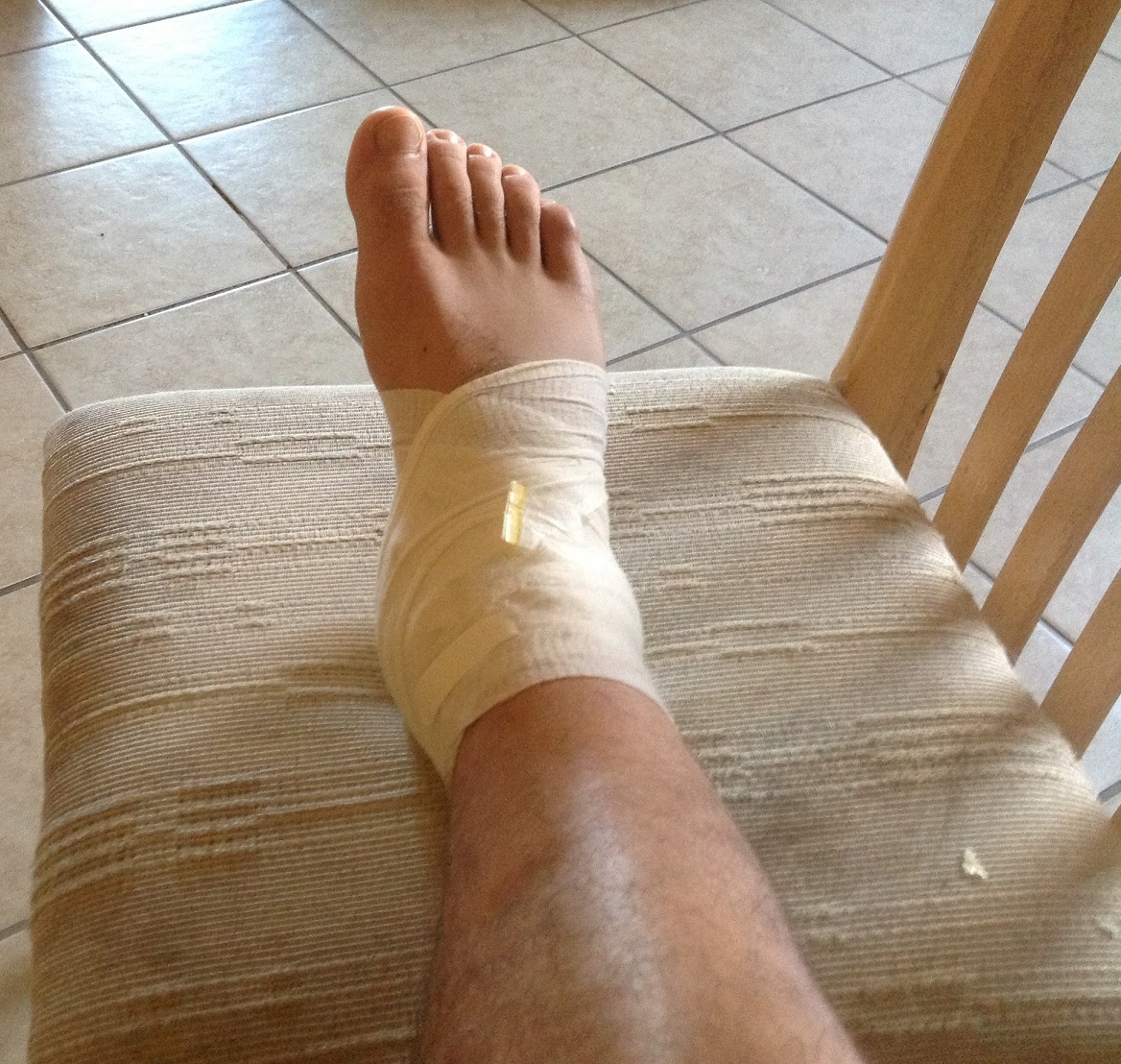wrapping a sprained ankle